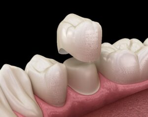 Dental Crowns for Western Springs, IL