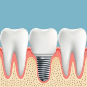 Dental Implants for Western Springs, IL