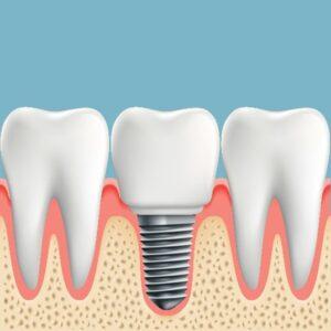 Dental Implants for Hinsdale, IL