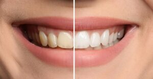 Teeth Whitening for Western Springs, IL